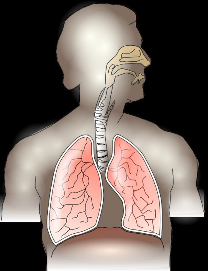 Absceso pulmonar y neumonía necrotizante
